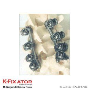 K-Fixator
